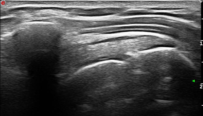 Ultrazvuk injekcije